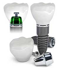 Fishers Dental Implants