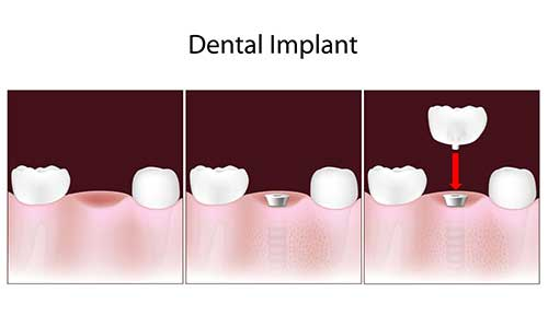 Implant Dentist in Fishers