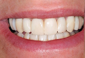 Carmel Before and After Invisalign