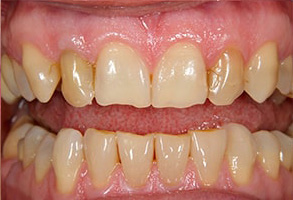 Castleton Before and After Teeth Whitening
