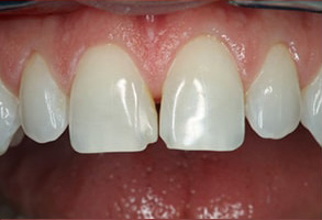 Fishers Before and After Same Day Crowns